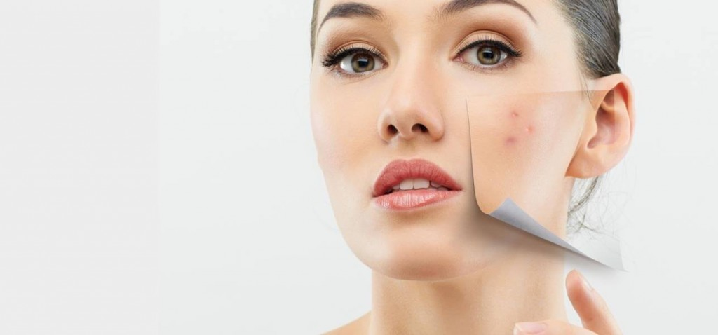10-Simple-Remedies-For-Treating-Dry-Skin-Acne